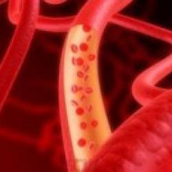 Пептиды при атеросклерозе, артериальной гипертензии, нейроциркулярной дистонии