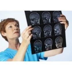 Пептиды при менингите, неврите