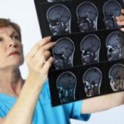 Менингит, невриты