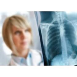 Пептиды при туберкулезе
